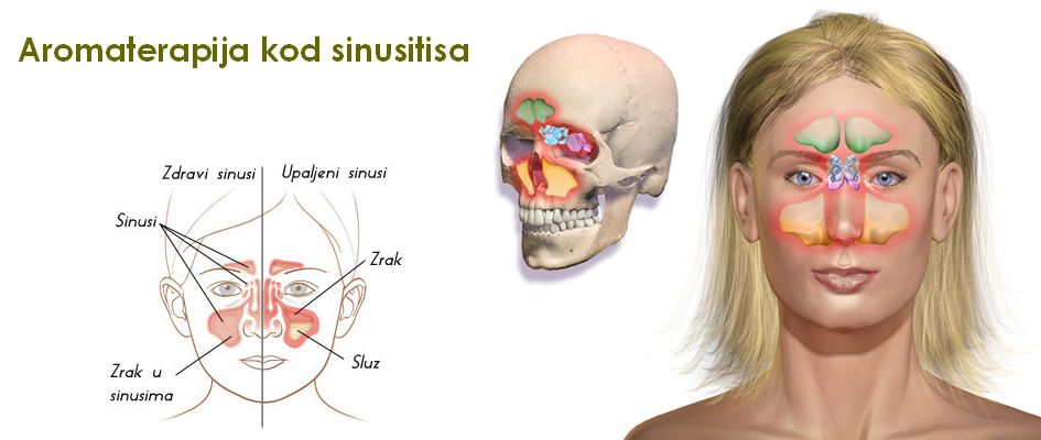 upala sinusa - eterična ulja