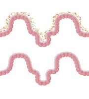 propusna crijeva prirodno liječnje